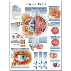 3B Scientific Glossy Paper Diseases of The Eye Anatomical Chart: Industrial & Scientific